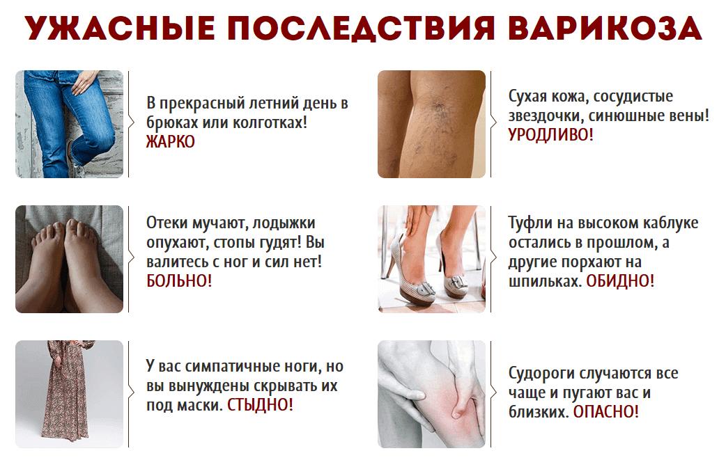Последствия варикоза