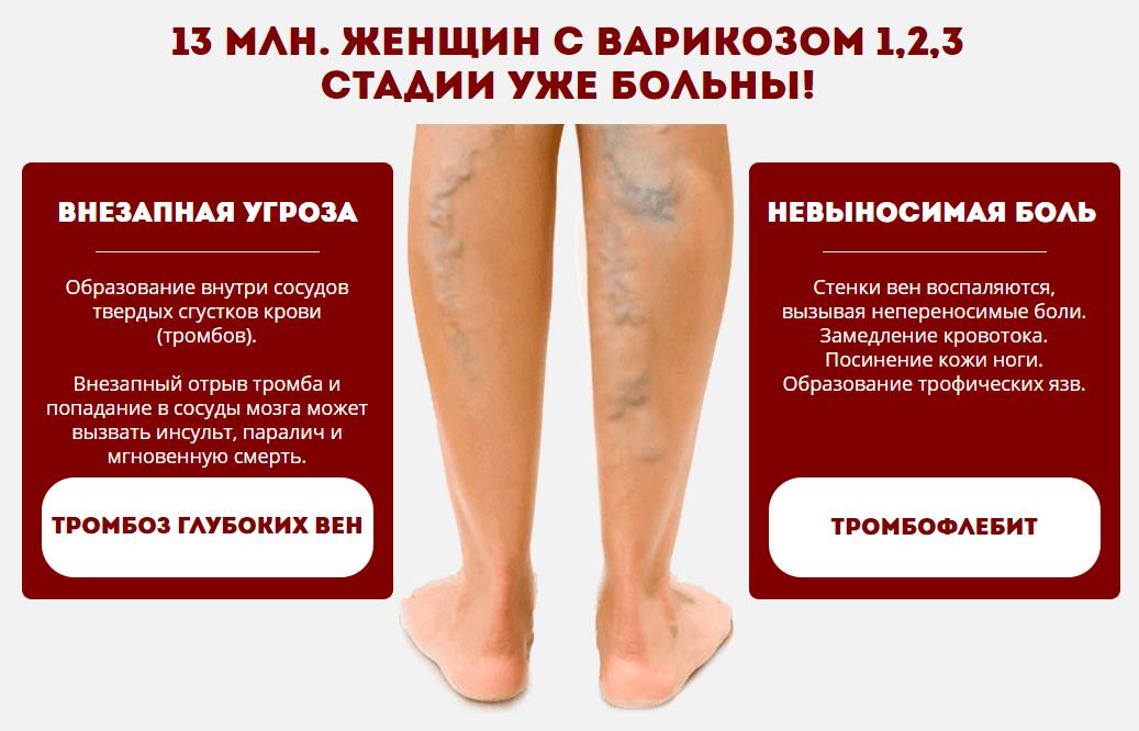 Заболеваемость варикозом